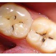 Лечение заболеваний зубов