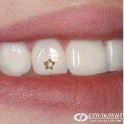 Украшение зуба стразой (скайсом) фото