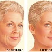 Омоложение нижней зоны лица и шеи фото