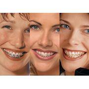 Ортодонтическое лечение зубов фото