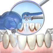 Профессиональная гигиена полости рта. фото