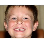 Удаление молочного зуба у детей фото