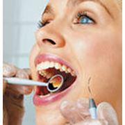 Лечение всех видов заболевания зубов и десен. фото