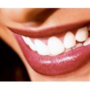 Серебрение зубов фото