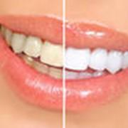 Отбеливание зубов фото