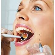 Лечение кариеса и зубных каналов фото