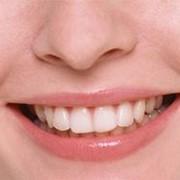 Отбеливание зубов, Стоматологические услуги, Стоматология фото