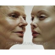 Заполнение гелем морщин (на лбу, над губой, под глазами), носогубных складок фото