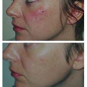 Мезотерапия лечит проблемную кожу фото