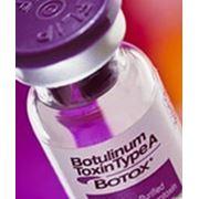 Коррекция мимических морщин препаратами Ботокс и Диспорт.