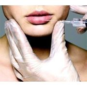 Контурная пластика: коррекция носогубных складок, увеличение щек, скул, коррекция формы и увеличение фото