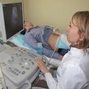 Ультразвуковая диагностика фотография