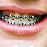 Материалы стоматологические фото