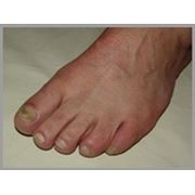 Восстановление организма от грибка на ногтях