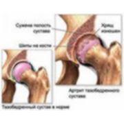 Восстановление и укрепление суставов фото
