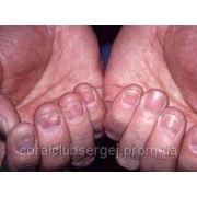 Восстановление организма от анемии фото