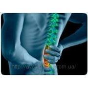 Боли в спине и пояснице фото