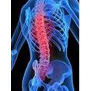 Приём врача врача-ортопеда в Симферополе. Лечение патологии позвоночника: сколиоз остеохондроз межпозвонковая грыжа и суставов.