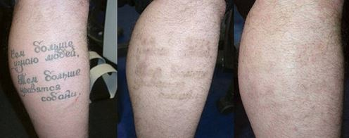 Лазерное удаление татуировок запорожье Криотерапия и криодеструкция Усадская улица Чебоксары