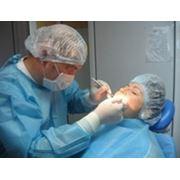 Имплантация в Полтаве качественное лечение и протезирование зубов. фото