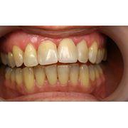 Реставрация зубов в Днепропетровске фото