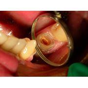 Качественное ендодонтическое лечение! фото