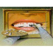 Лечение и реставрация зубов Донецк фото