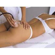 Баночный массаж дома фото