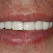 Профессиональная гигиена и отбеливание зубов фото