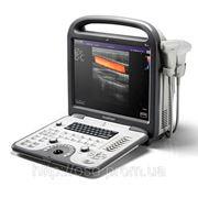 УЗИ аппарат SonoScape S6V фото