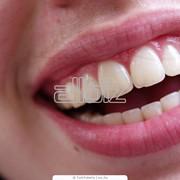 Стоматологические услуги в Алматы фото