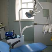 Снятие зубных отложений (камней) фото