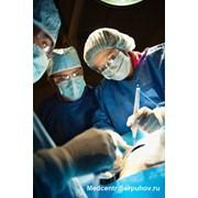 Удаление кисты бартолиниевой железы под общим наркозом фото