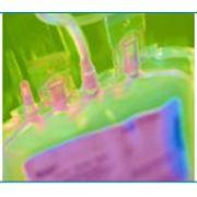Устройства для переливания инфузионных растворов фото