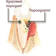 Лечение парадонтоза и парадонтита фото