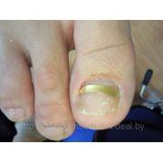 Ортониксия: коррекция вросшего ногтя — установка Золотой пластины фото