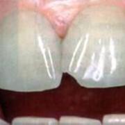 Кариес зубов, профилактика и лечение кариеса фото