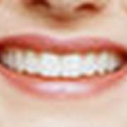 Лечение заболеваний зубов фото