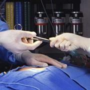 Радиоволновая хирургия фото