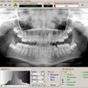 Панорамная рентгенография фото