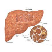Фибротест - диагностика состояния ткани печени без биопсии. фото