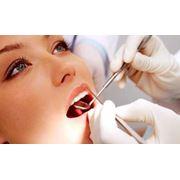 Пломбирование зубов в Актау фото