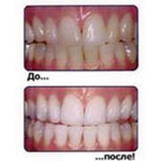Лечение и реставрация зубов в Алматы фото