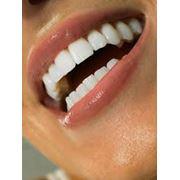 Отбеливание зубов в Алматы фото