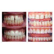 Эстетическая реставрация зубов в Алматы фото