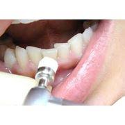 Отбеливание зубов медициские услуги стоматологии Darling Dent стоматологическая клиника в Алматы