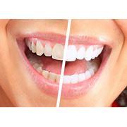 Отбеливание зубов в алматы