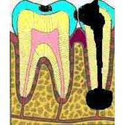 Киста зуба фото
