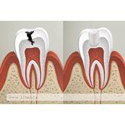 Пломбирование корневых каналов зубов фото