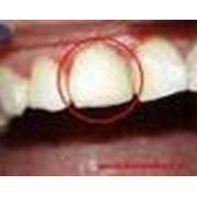 Лечение тканей зуба фото